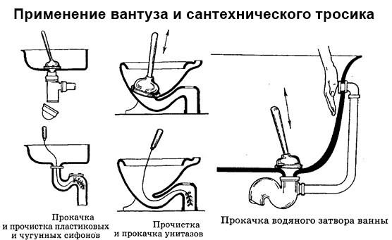Схема устранения засора в раковине, унитазе и ванне с помощью вантуза и тросика.